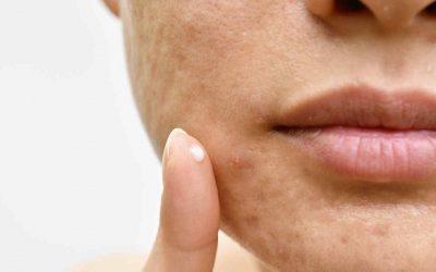 Retinoides tópicos para el acné