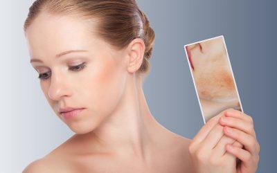 Maquillaje para piel sensible y con acné