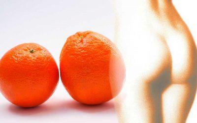 Celulitis o piel de naranja: qué es, causas y cómo evitarla