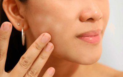 ¿Cómo eliminar manchas blancas de la cara?