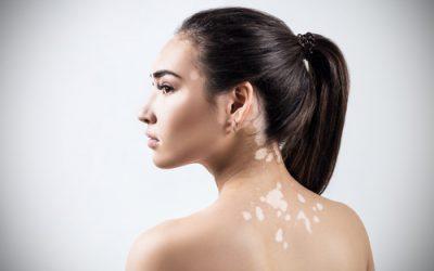 Remedios para eliminar manchas blancas en la piel