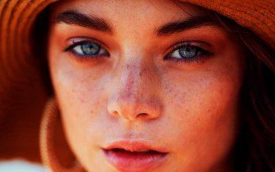 Diferentes tipos de manchas en la piel