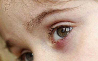 ¿Por qué salen los orzuelos en los ojos?