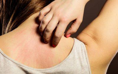 Prurito: Picores en la piel, causas y cómo aliviarlo