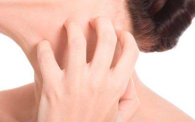 Piel atópica | Qué es y cómo tratarla